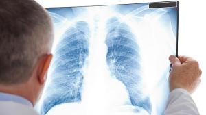 pulmon-trasplante-celulas--644x362