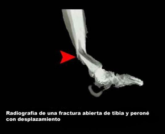 visuel-Radiografia-de-fractura-abierta-1ed